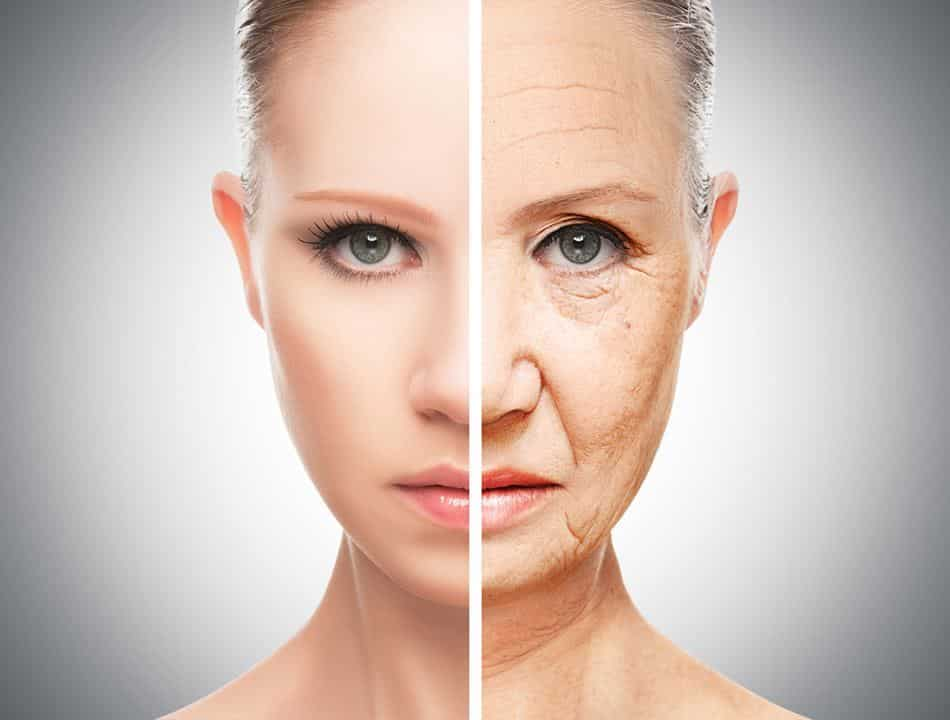 Facelift-Surgery-Wrinkle-Free-Face
